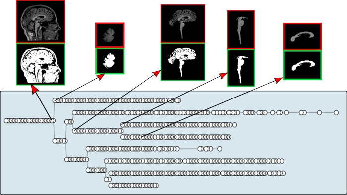 brainn interactive max tree