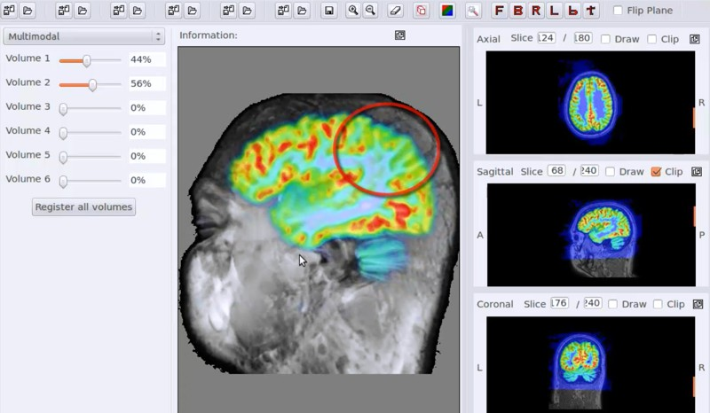 brainn software analise cerebral professora ting