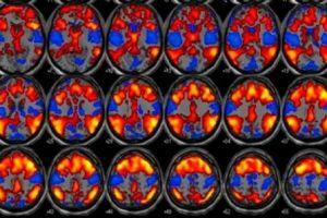 Estudo avalia relação entre padrões de sono e epilepsia