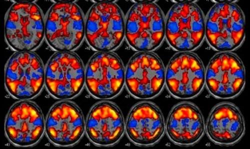 imagens cerebrais