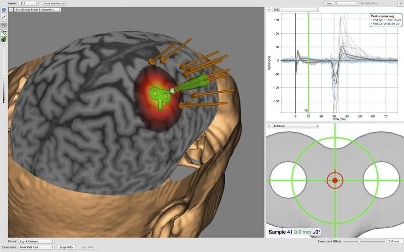 neuronavegador Unicamp