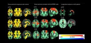 esclerose lateral amiotrofica - materia fapesp