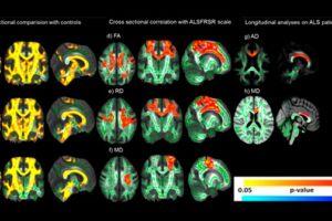 Esclerose lateral amiotrófica: em busca do diagnóstico precoce