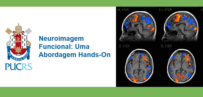 curso neuroimagem abordagem funcional