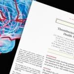 CEPID BRAINN - pesquisa trombectomia AVC do DR LI LI MIN