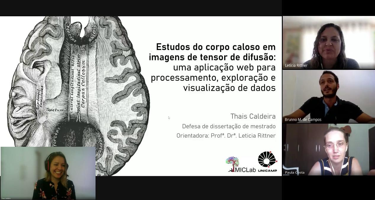 CEPID BRAINN - Corpus callosum studies in diffusion MRI - imagem da Defesa